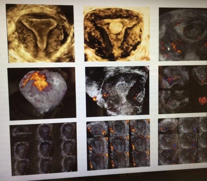 La Dra. Simón presenta su tesis: Un estudio confirma la utilidad de la ecografía 3D en el diagnóstico del cáncer de endometrio